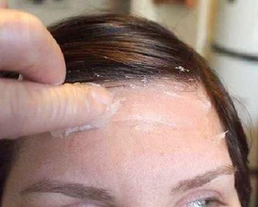 Como quitar manchas de tinte en la piel rapido